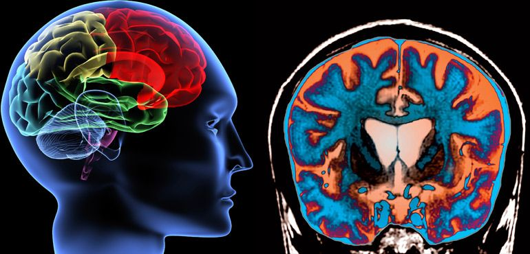 Plasmapheresis in Neurological Disorders   Disorders ...
