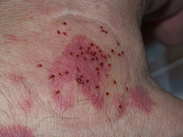 Scabies Bed Bugs
