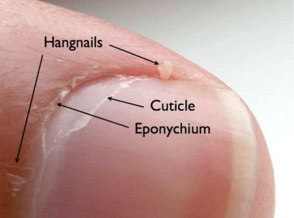 Image result for what is hangnail