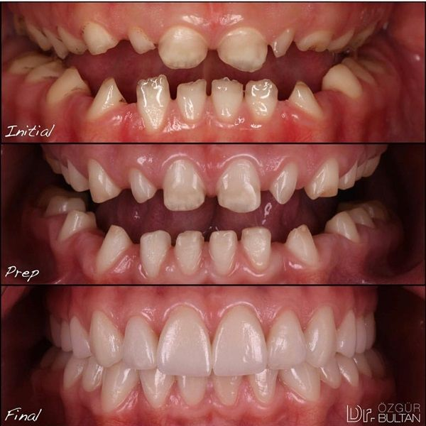 dentaltown microdontia is a condition in which one or more teeth