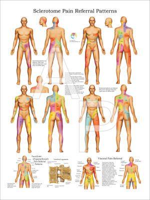 ESCLEROTOMA DOLOR VISCERAL | ANATOMÍA 2 | Pinterest | Dolor y Anatomía