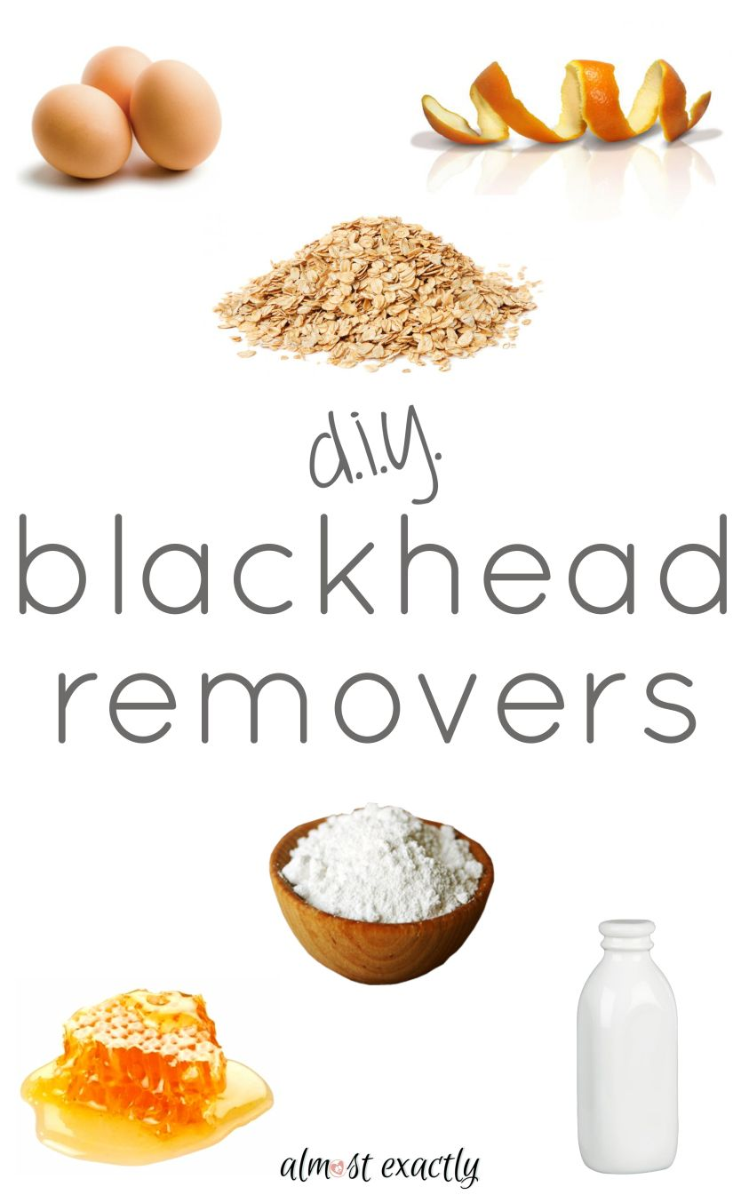 Diy blackhead removers  Things to try  Pinterest  Diy blackhead