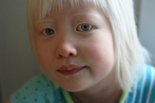 Types Of Albinism Albinism Albino Girl Albino Human