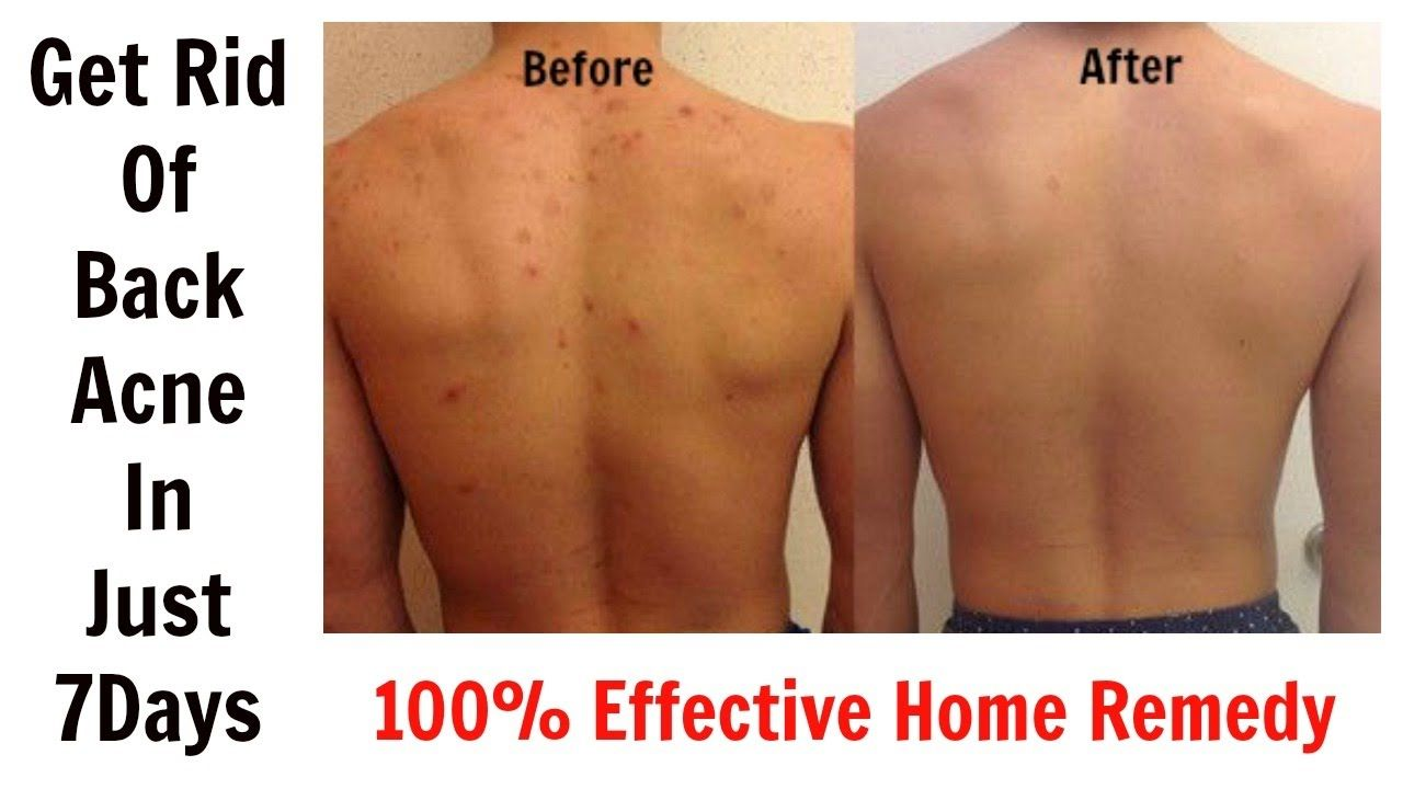 109f37a6ad83f3edfd281570a0b3f589 - How To Get Rid Of Pimple Marks On Back