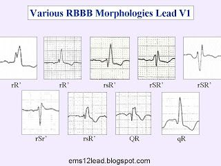 Right Bundle Branch Block Ems 12 Lead Bundle Branch Block Echocardiogram Ecg Interpretation