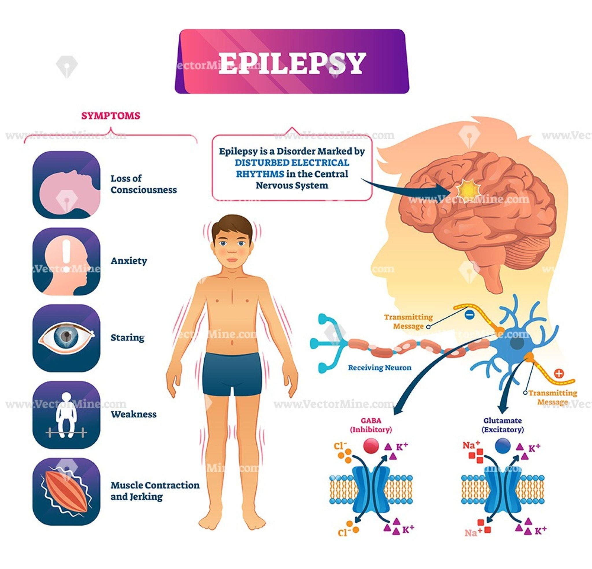 Epilepsy Biological Vector Illustration Infographic
