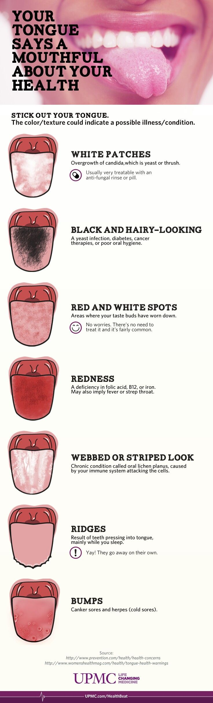 What does your tongue say about your health infographic tongue infographic your tongue and health note not a medical diagnosis just a general guide ridges can mean tongue swelling and could be serious if swelling geenschuldenfo Image collections
