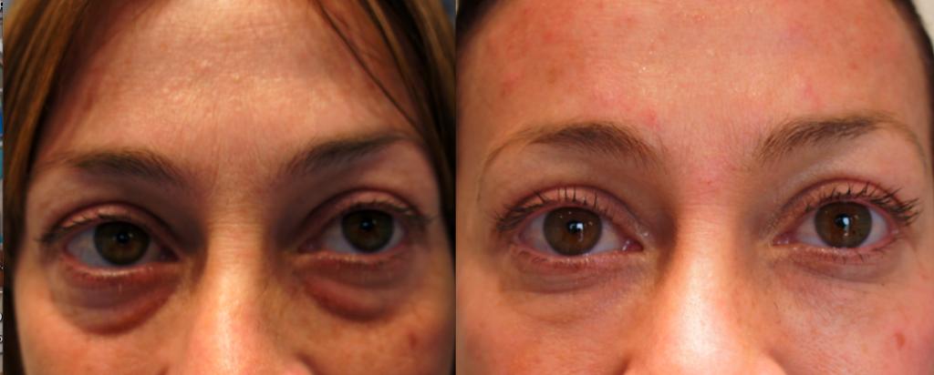 Dermal Fillers for Tear Troughs | Dermal Fillers Laser