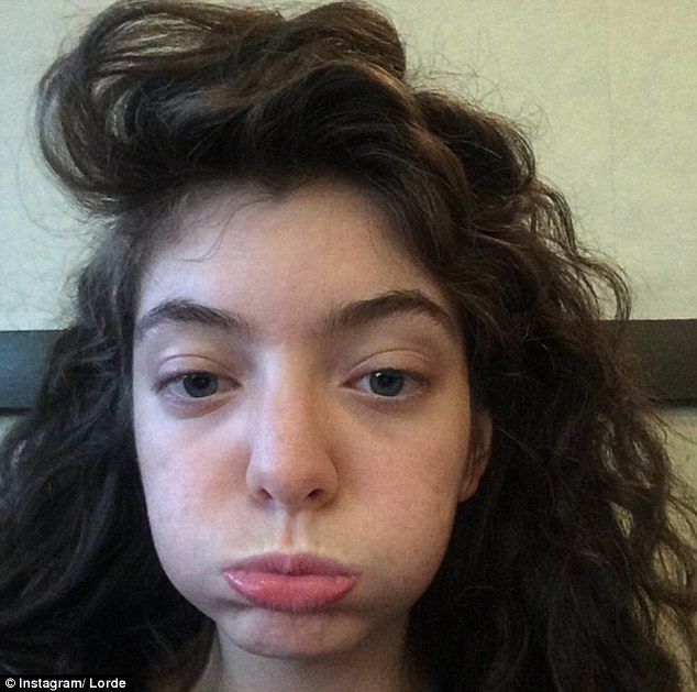 Lorde Plastic Surgery Lorde Without Makeup Lorde Before And After
