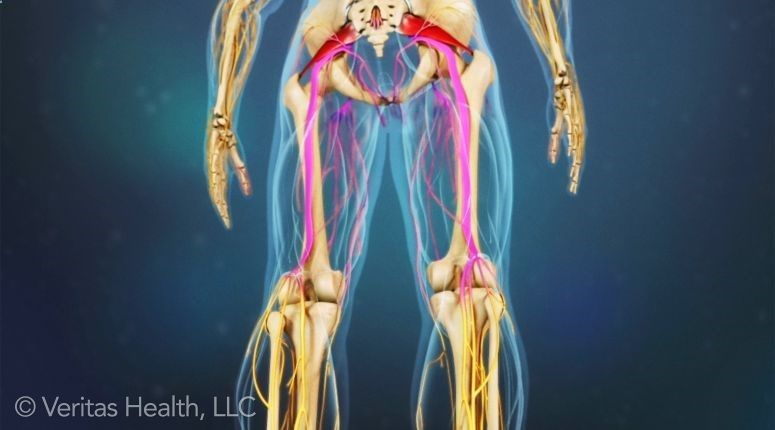 Could This Be What I Have Piriformis Syndrome Irritates The