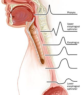 pin on spoonie warrior Diagram Of The Lower Esophageal Sphincter laryngopharyngeal reflux cleveland clinic