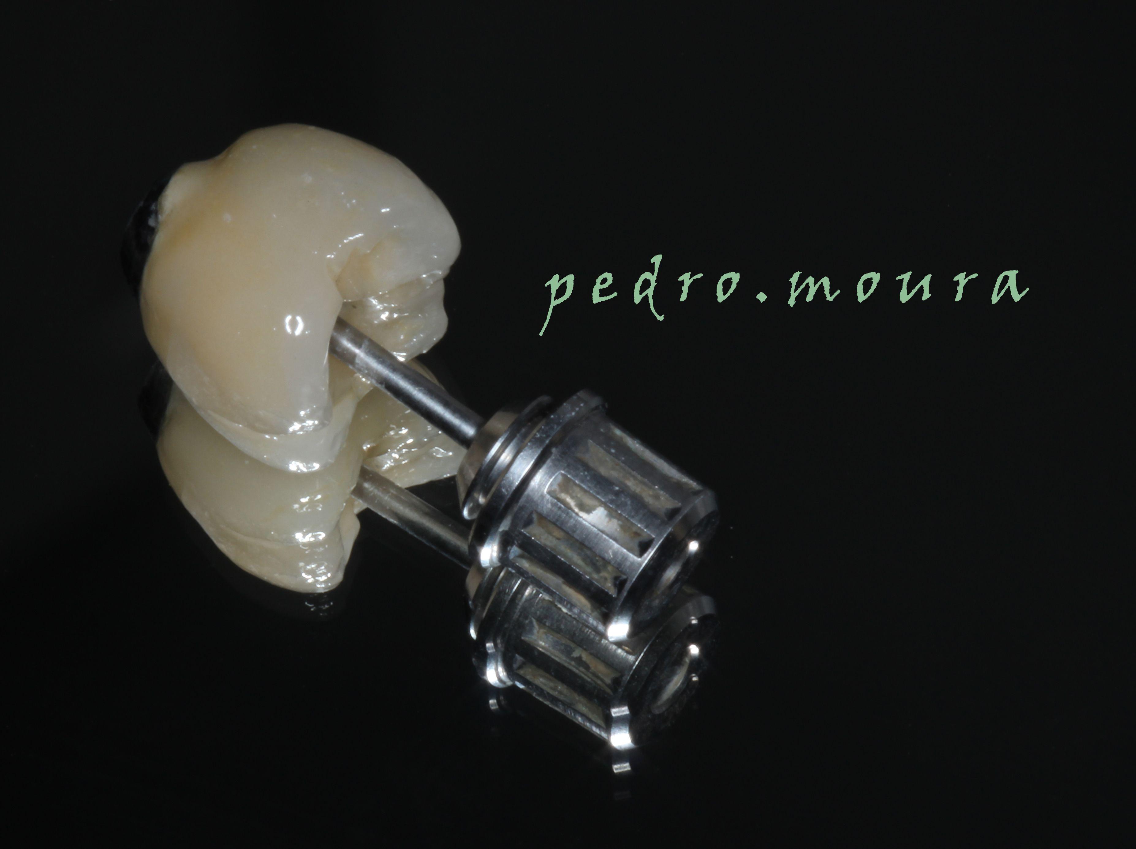 Coroa para parafusar sobre implante.