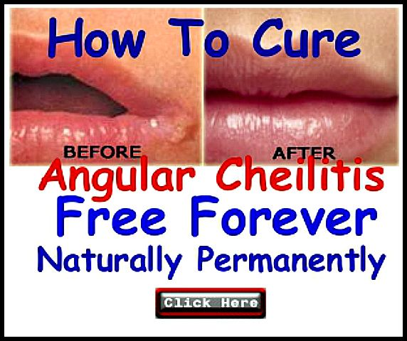 Angular Cheilitis Is A Condition That Causes Red Swollen Patches