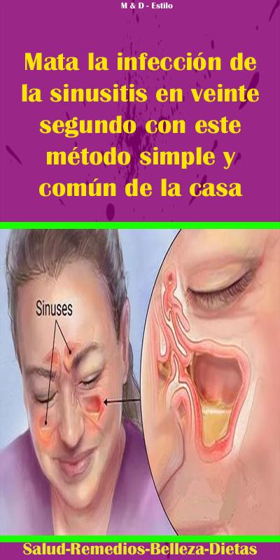 Sinusitis remedios caseros infeccion