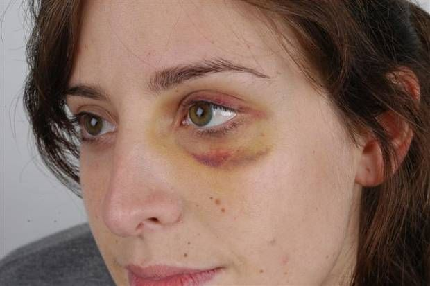 Image result for bruised face woman