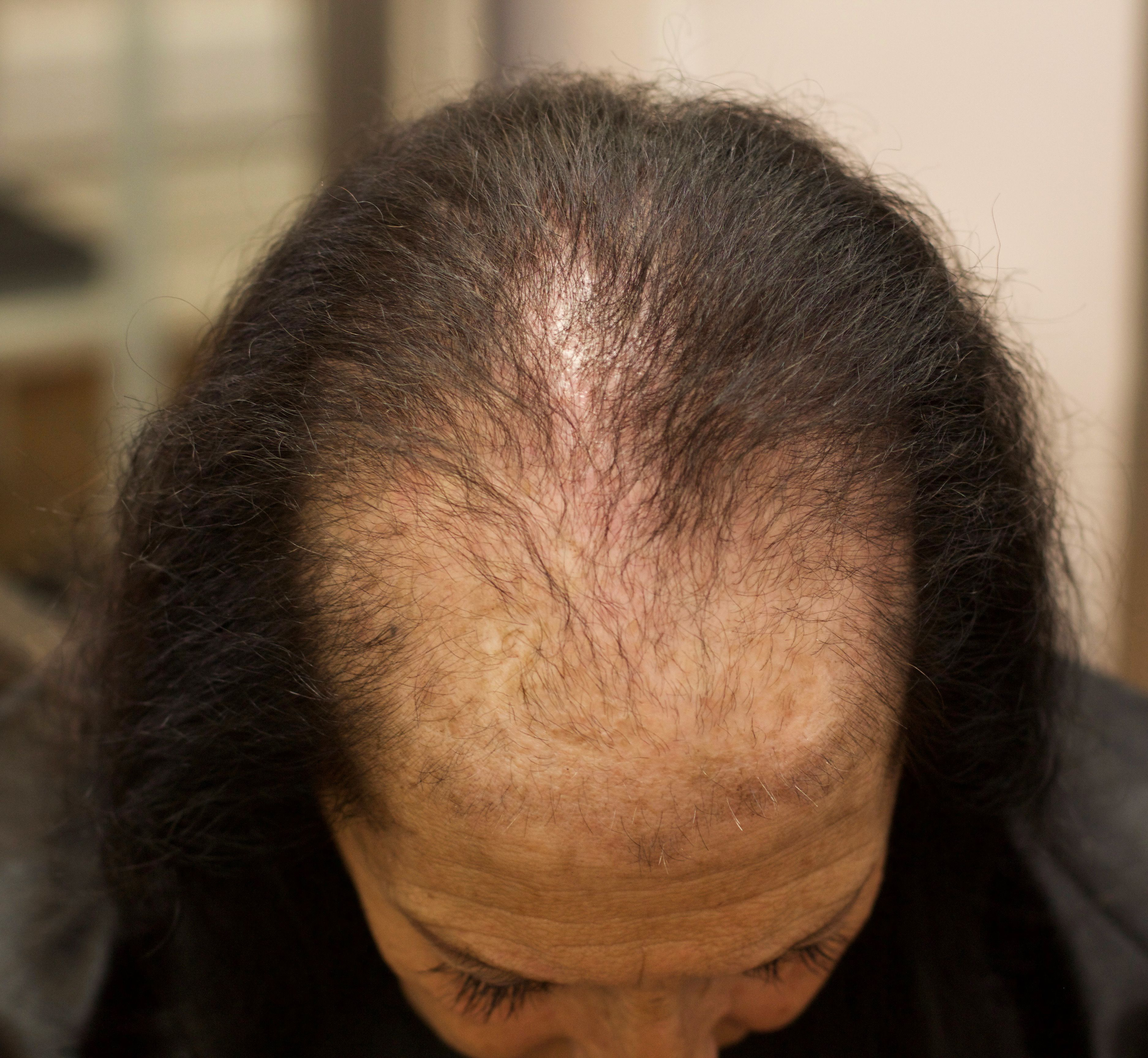 We Have Salons Nationwide Offering Our Non Surgical Hair Loss Solution In 2020 Hair Loss Solutions Natural Hair Loss Treatment Hair Loss Women
