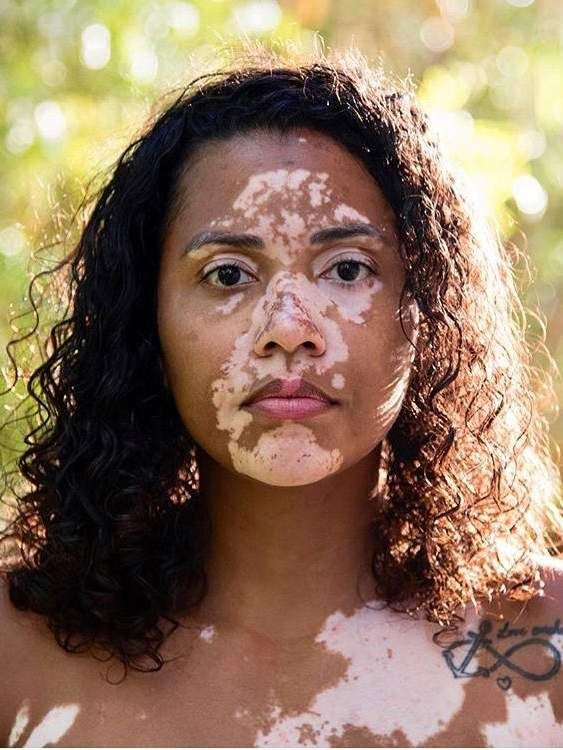 This woman has vitiligo. I've seen cases of it where it is almost perfectly…