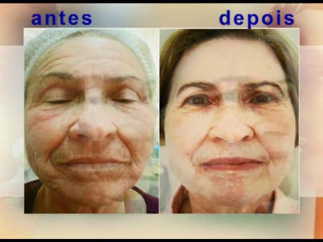 Peeling de Fenol Profundo Resultados Hyperpigmentation treatment at meladermpigmentreducingcomplex.org