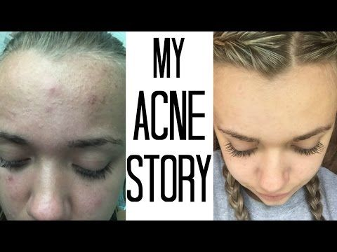 How I Got Rid Of My Acne How To Get Rid Of A Pimple Scab Overnight