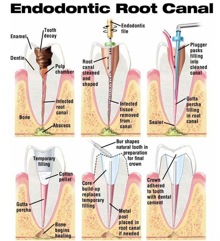 Endodontic Root Canal Odontologia Endodoncia Salud Dental