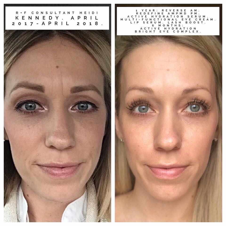 First Picture Age 35 Second Picture Age 36 Agingbackwards Rodan And Fields Skin Rodan And Fields Redefine