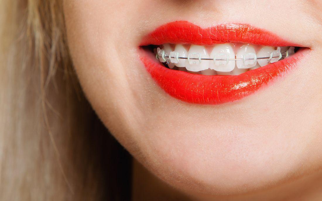 tooth straightening Teeth straightening, Straight teeth