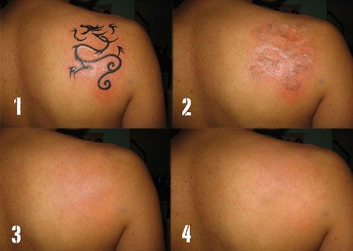 Remove Dragon Tattoo with C Wrecking Balm Tattoo Removal Cream ...