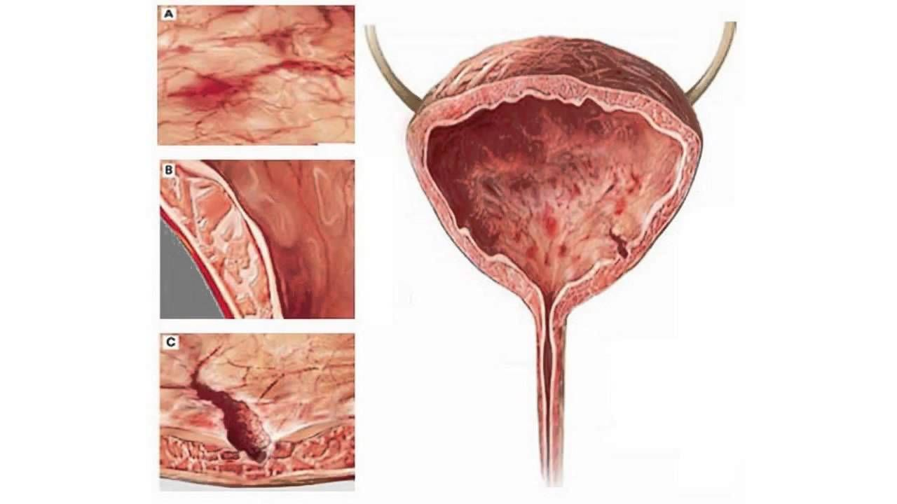 sex Cystitis due to