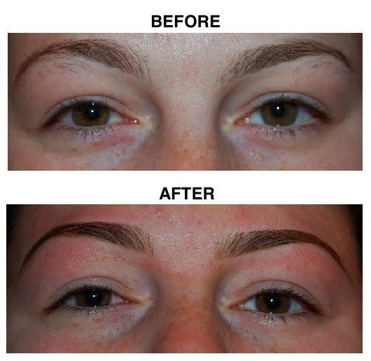 Eyebrow Shapes Before And After