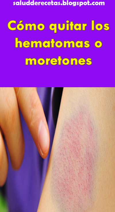 Remedios caseros para eliminar moretones