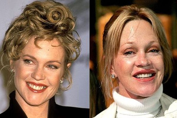 Celebrity Facelifts Gone Wrong | Elite Facial Plastic ...