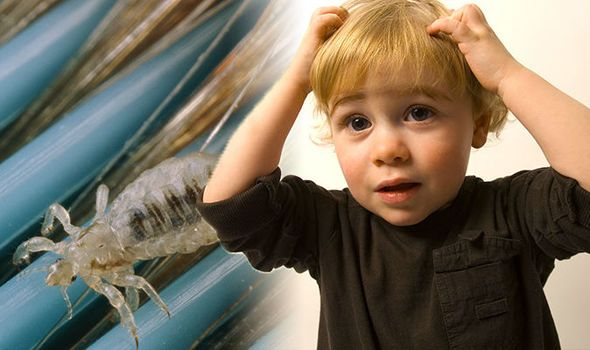 Head lice treatment: Don't use shampoo or protection spray without doing T