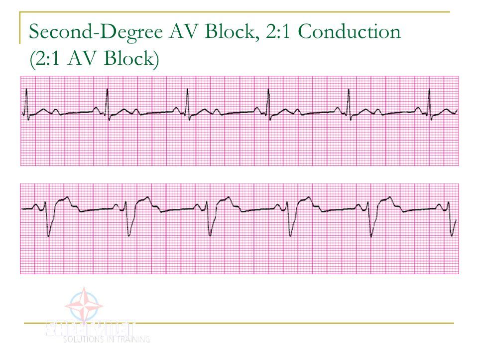 acls drugs cheat sheet Second-Degree AV Block, 21 Conduction (21