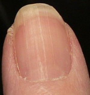 Lines and moons b12 deficiency nail changes are gradual if you lines and moons deficiency nail changes are gradual if you have no moons on fingernails except thumbs then your fingernails have been showing signs of low sciox Choice Image