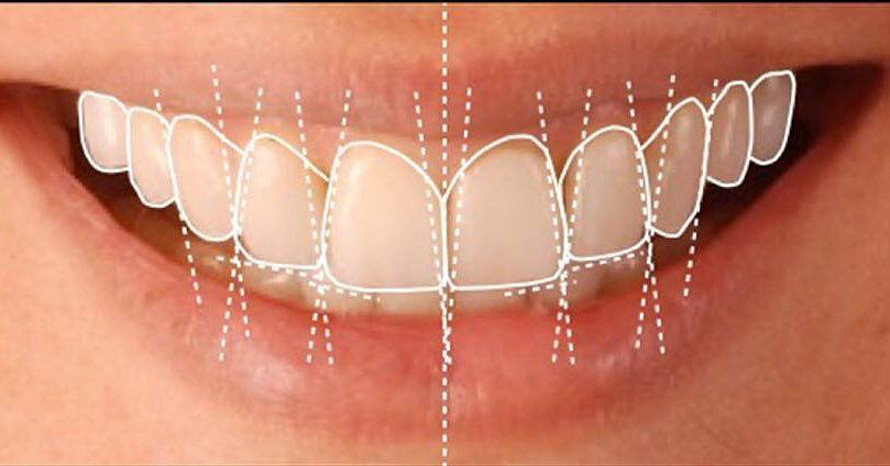 How long to keep gauze in after molar extraction