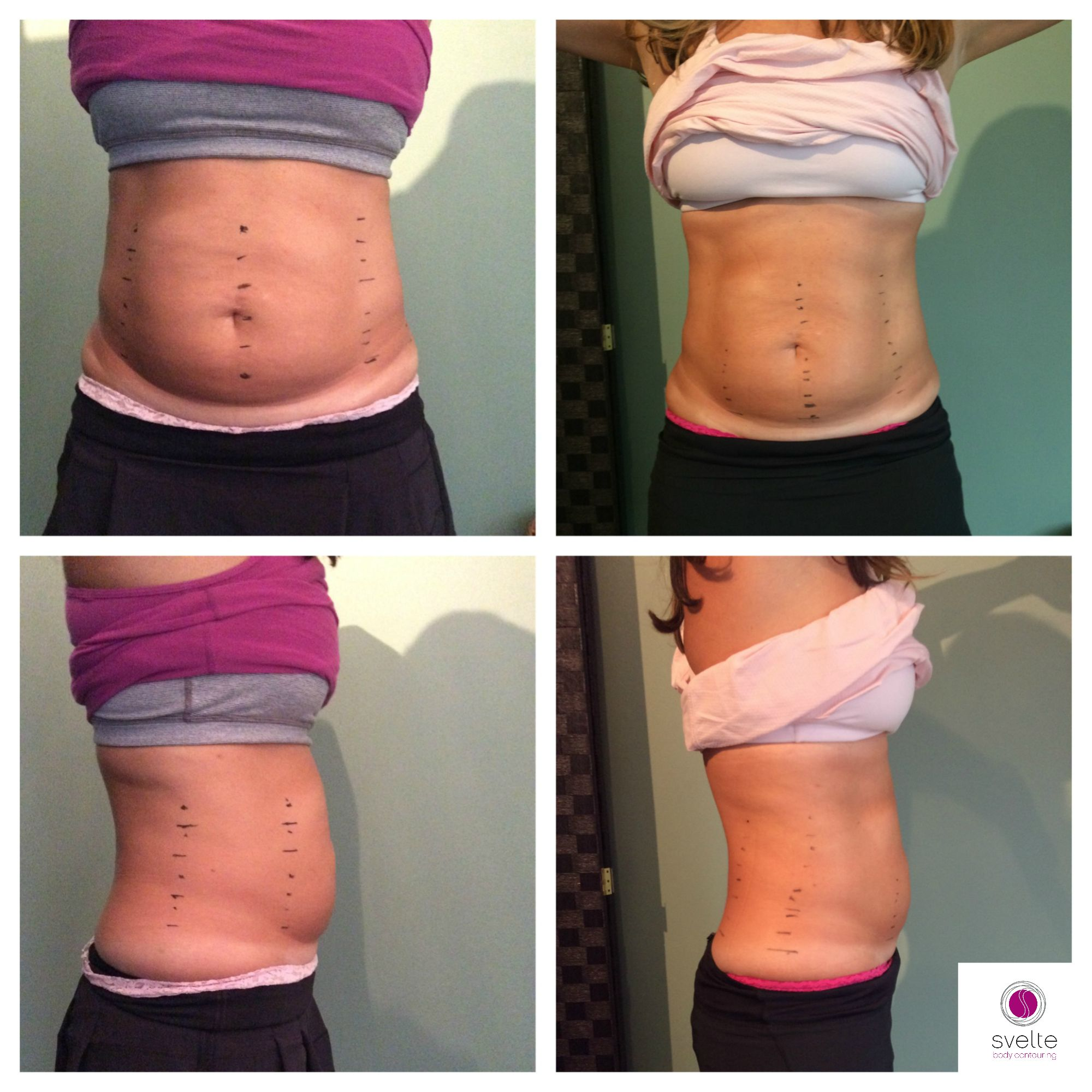 Actual client before and after 4 Svelte Body Contouring