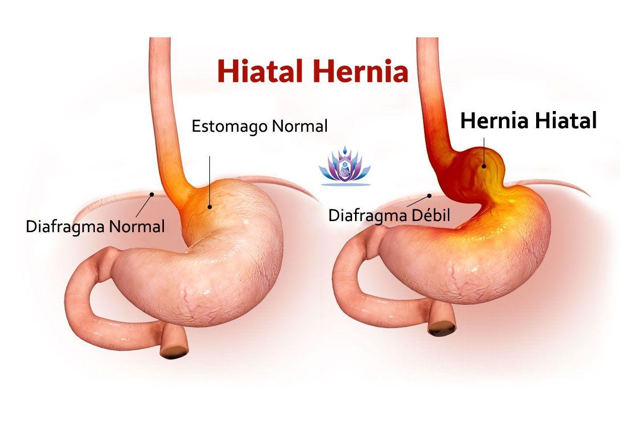 El diafragma es el m sculo que separa el t rax del abdomen el hiato diafragm tico es parte de - Alimentos prohibidos para la hernia de hiato ...