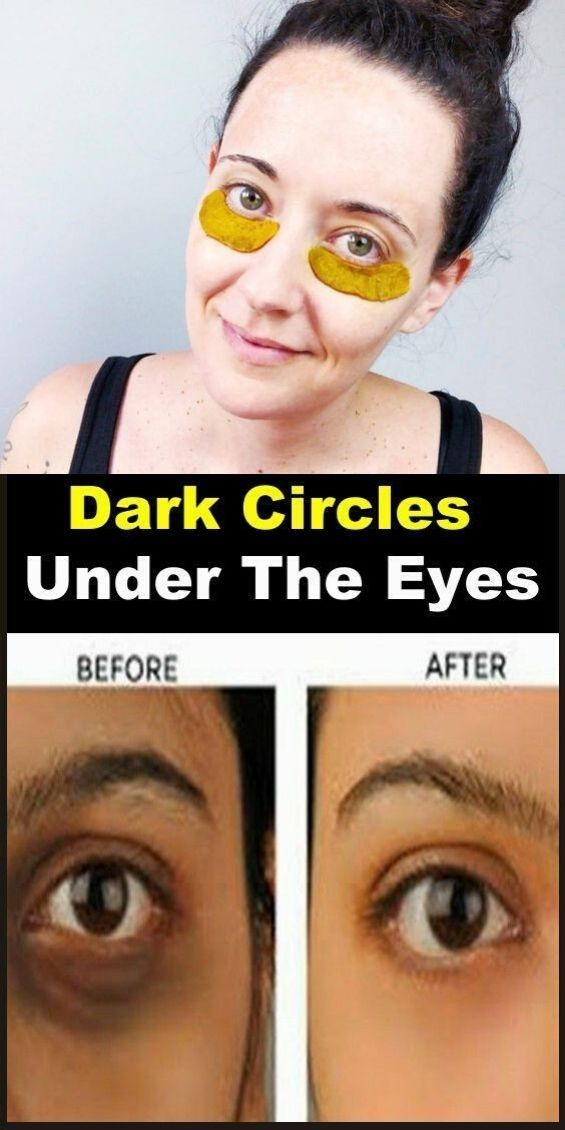 How to get rid of dark circles under eyes overnight ...