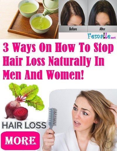 How to stop hair loss in men naturally