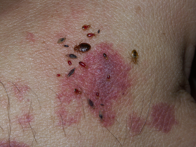 Home Remedies for Bed Bugs Bed bugs, Rid of bed bugs