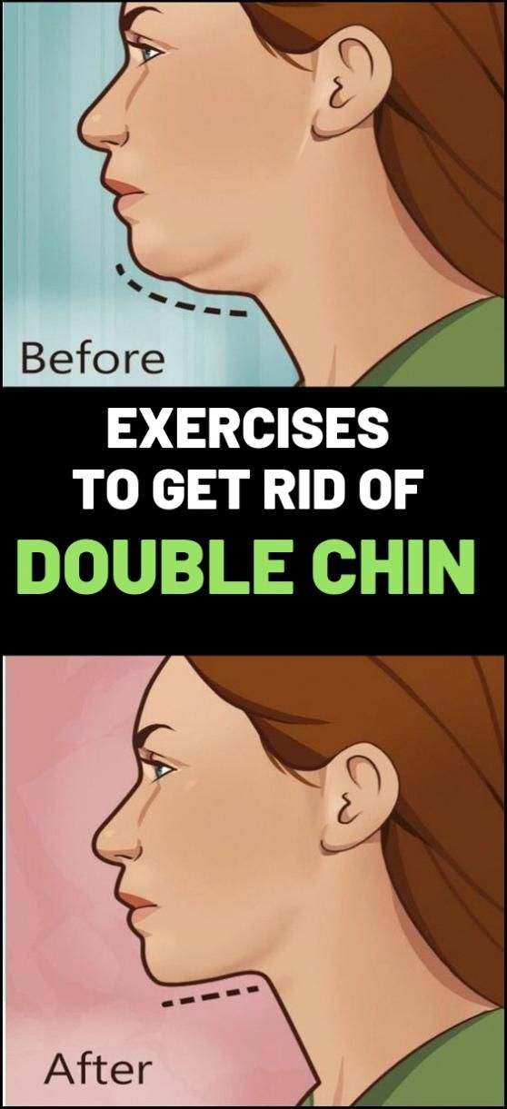 Double chin is a frequent issue found in both women and men. Women are…