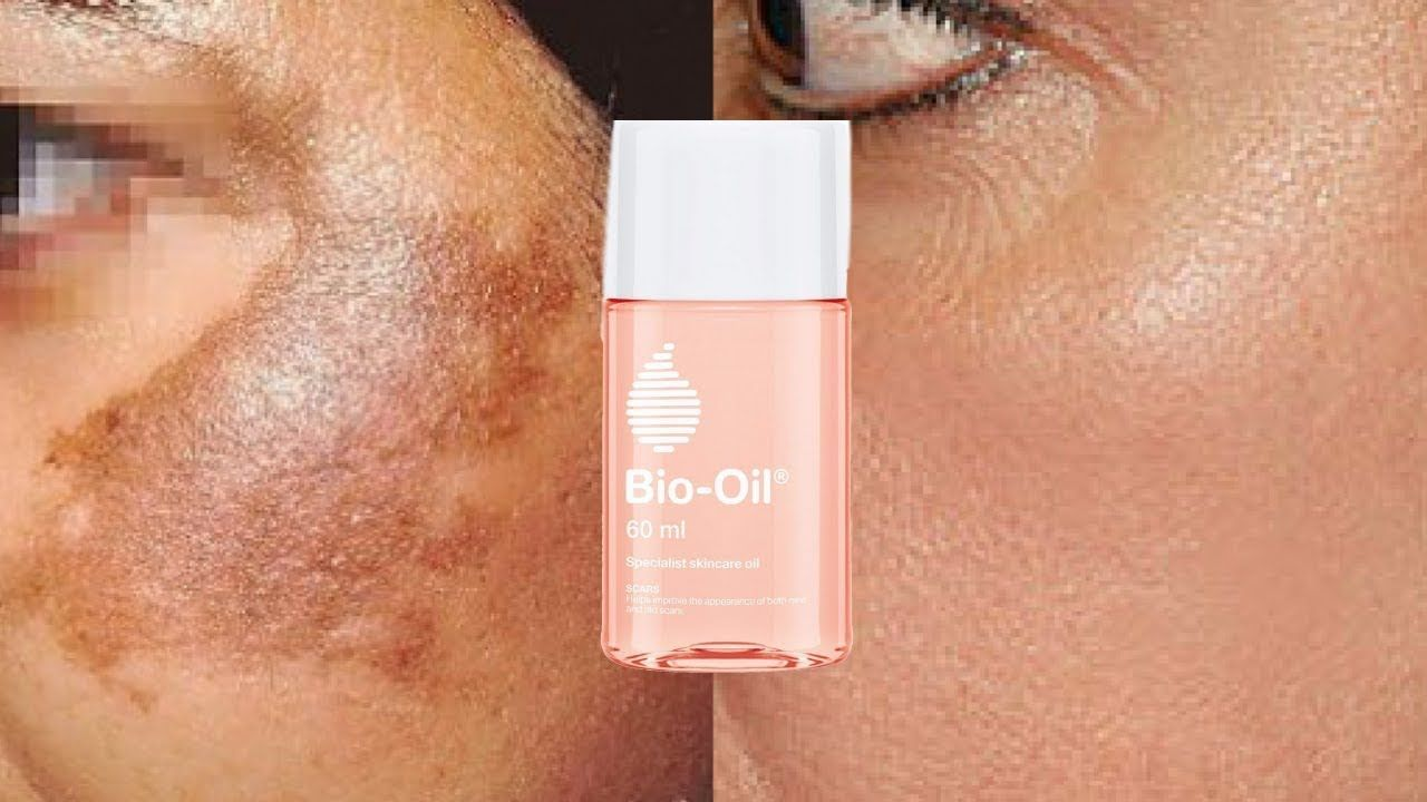 Pin On Bio Oil Before And After