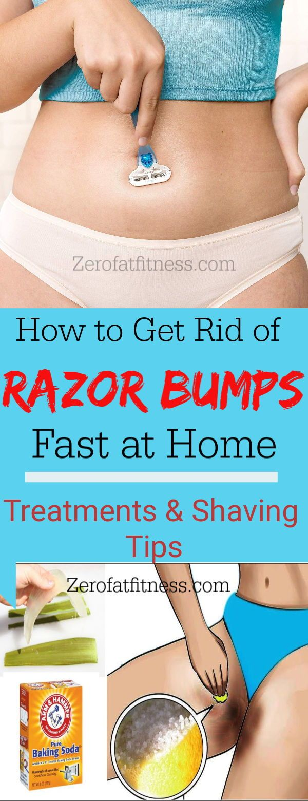 111d12d76cc2dba0eb6287eafae85b75 - How To Get Rid Of Shaving Bumps On Stomach
