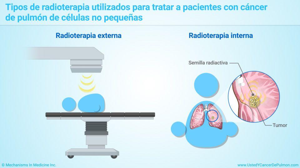 signos y sintomas de cancer de pulmon de celulas no pequeñas