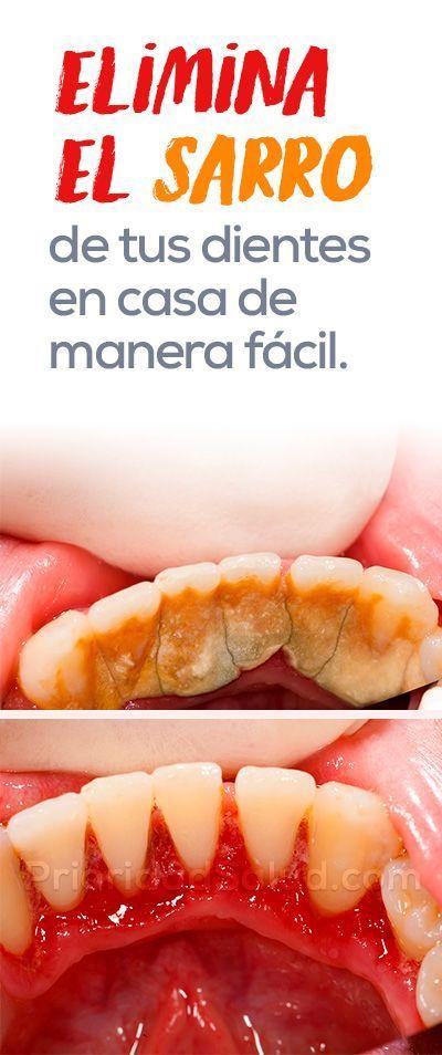 Elimina el sarro de tus dientes en casa de forma f cil consejos de salud dientes salud y - Eliminar sarro en casa ...