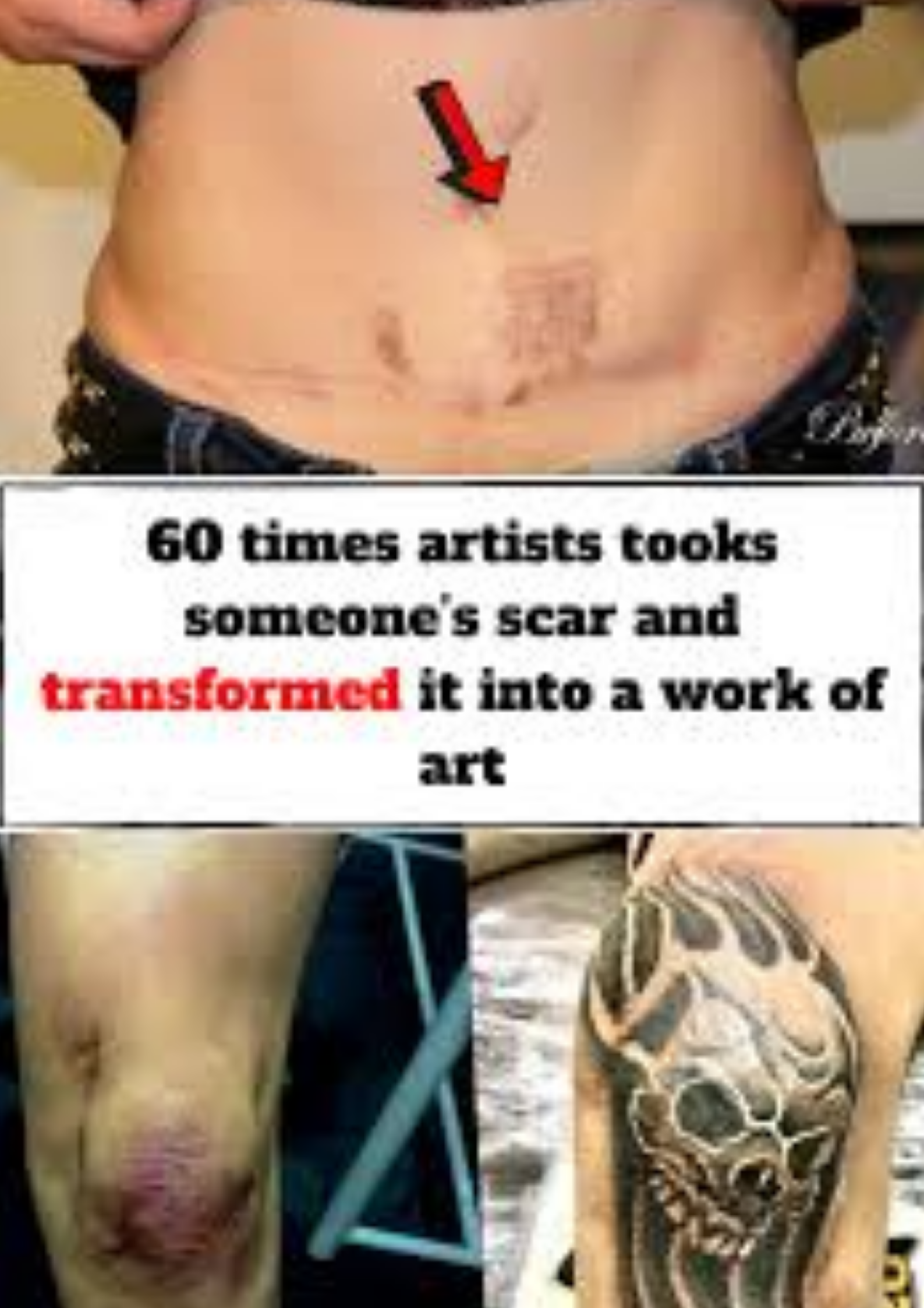 Photo of 60 times artists tooks someone's scar and transformed it into a work of art