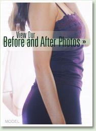 Lower Body Lift Photos