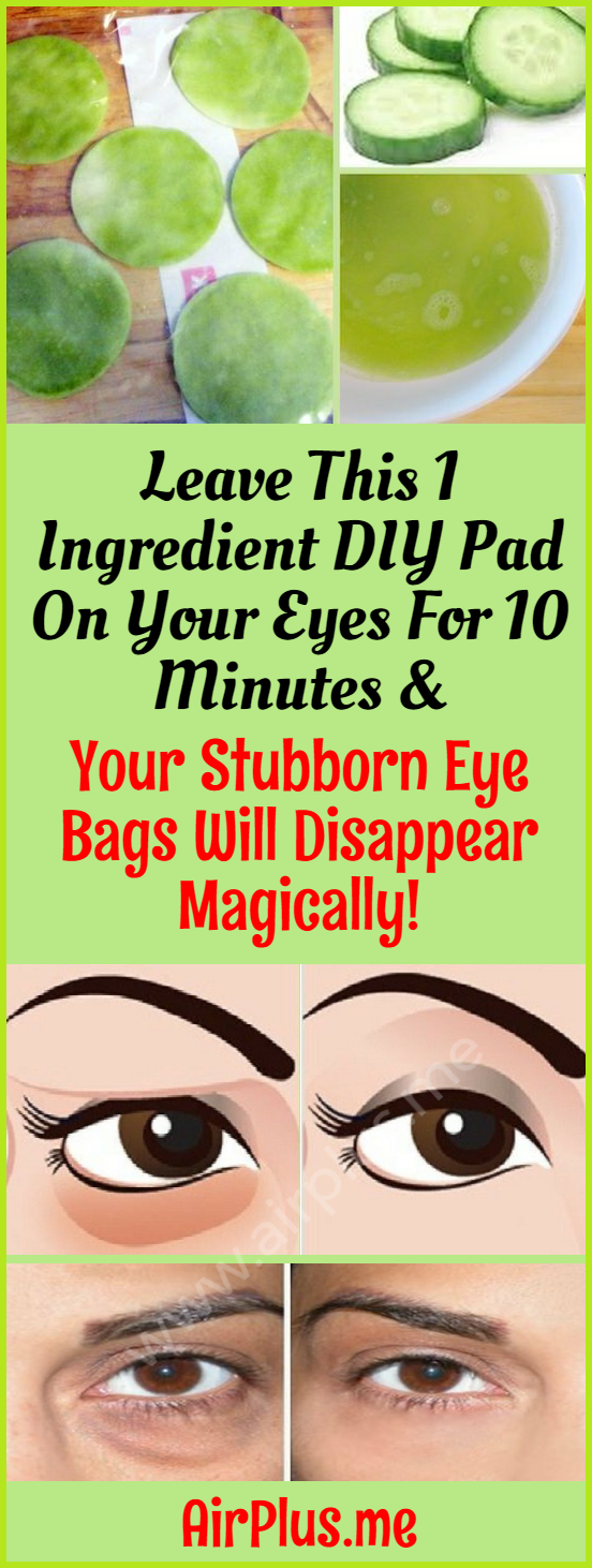 Leave This 1 Ingredient Diy Pad On Your Eyes For 10 Minutes Your Stubborn Eye Bags Will Disappear Magically Wi Eye Bags Eye Bag Remedies Eye Bags Treatment