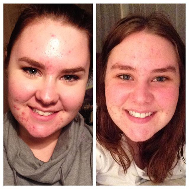 Gabbi On Instagram Beforeandafter The Photo On The Left Was Taken The Day I Started Minocycline The Photo On The Cystic Acne Minocycline Acne Acne Breakout