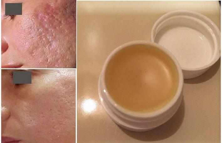 Elimine Cicatrizes Na Pele Em 2 Semanas Com Este Creme Caseiro